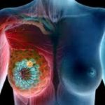 We Drink It Daily, But Don't Know That It Causes Breast Cancer