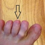 He Begs His Friends To Check Between Their Toes. The Reason Saved His Life And It Can Save Yours Too