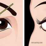 The Best Natural Way To Fix Drooping Or Sagging Eyelids