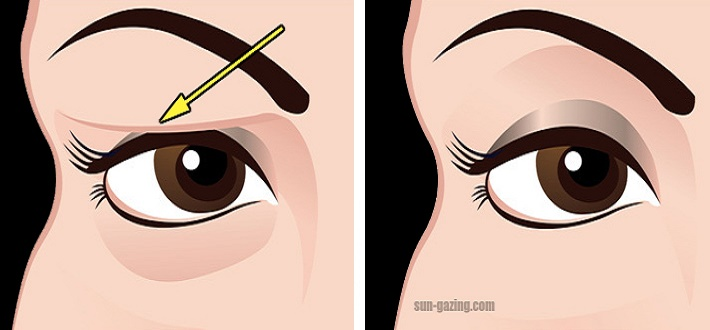 If Your Eyelids Tend To Droop And Sag, THIS Is The Best Natural Way To Fix It..